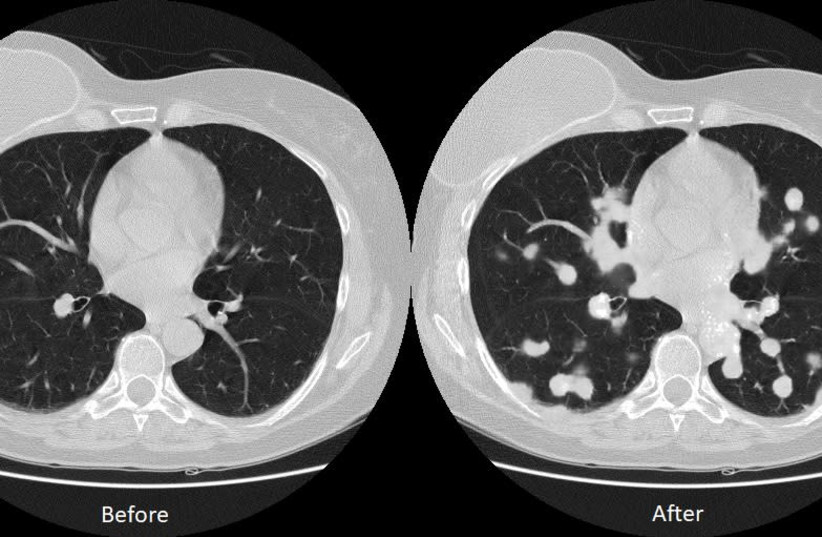 New research advances predictive treatment for lung cancer