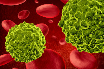 Blood cancers now second-most common and deadly in Australia