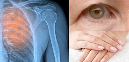 Lung cancer symptoms: Five 'surprising' warning signs of a tumour you may be ignoring