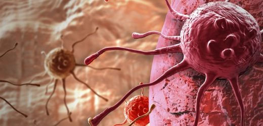 Study reveals effective therapeutic strategy to prevent colorectal cancer progression